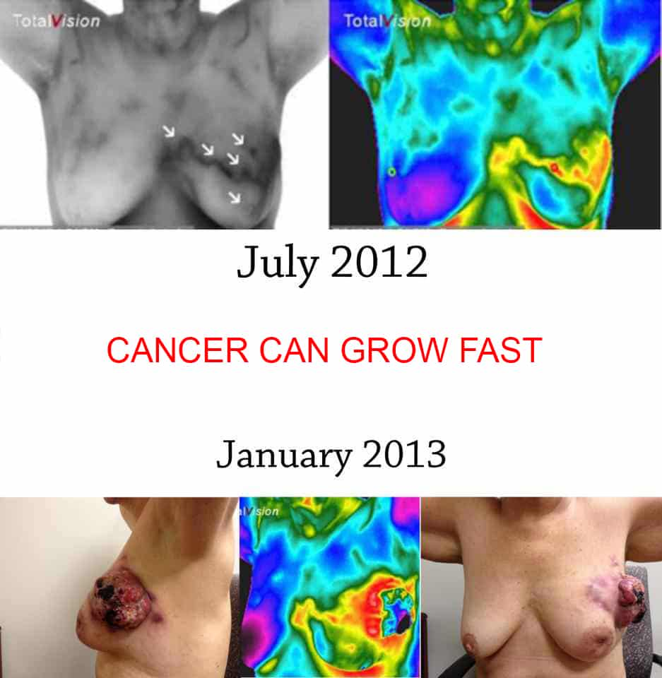 severe-breast-cancer-composite