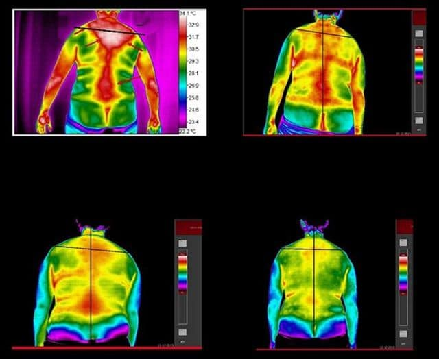 Thermographic Neurology
